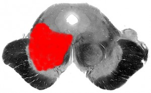 Синдром Бенедикта (срез)