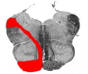 Синдром Сестана-Шене (срез)