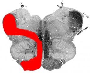 Синдром Бабинского-Нажотта (срез)