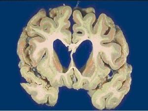 мозг при ХГ