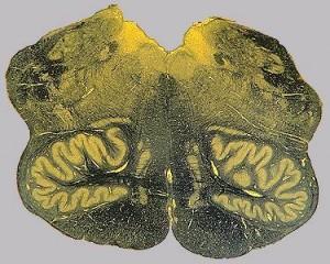 продолговатый мозг_срез на уровне нижних олив