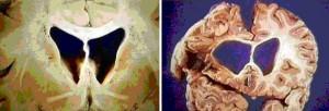мозг в норме и при ХГ