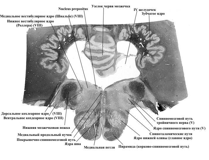 продолговатый мозг_срез3