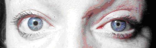 симптом Дальримпля