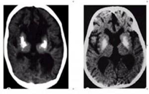 Айкарди-Гутьер синдром слева_ВИЧ-инфекция справа_КТ головного мозга