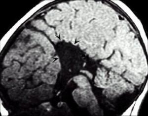 Айкарди синдром_МРТ головного мозга в сагиттальной проекции