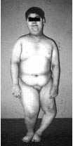 Барде-Бидля синдром_внешний вид ребёнка