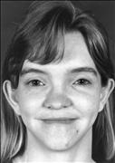Андерсен-Тавила синдром_характерные черты лица