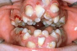 Апера синдром_аномалии зубного ряда