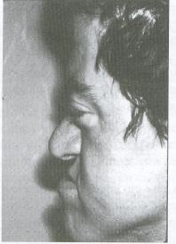 Апера синдром_04