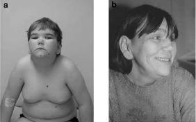 Бёрьесона-Форсмана-Лемана синдром_сын и мать-1