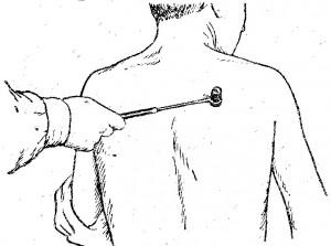 Бехтерева лопаточно-плечевой рефлекс