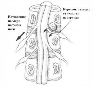 Бехтерева - Фпйерштейна тест_при латеральной протрузии
