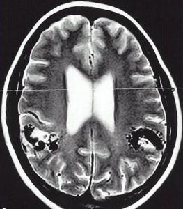 Бонне-Дешома-Бланка синдром_МРТ
