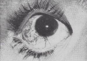 Бонне-Дешома-Бланка синдром_глаз
