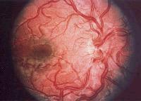 Бонне-Дешома-Бланка синдром_глазное дно
