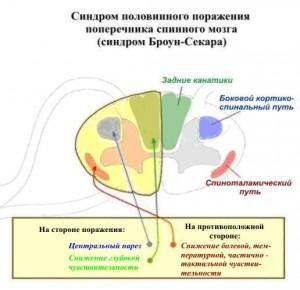 Броун-Секара синдром_анатомический субстрат