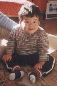 Маринеску-Съогрена синдром_внешний вид ребёнка