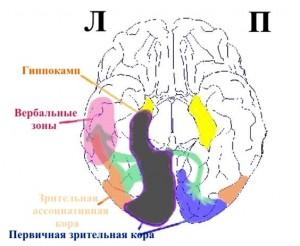 Дежерина теменно-затылочный синдром_схема