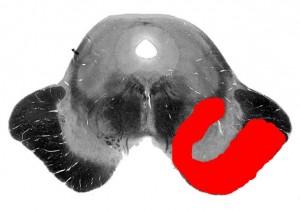 Киари-Фуа-Николеску синдром_схема