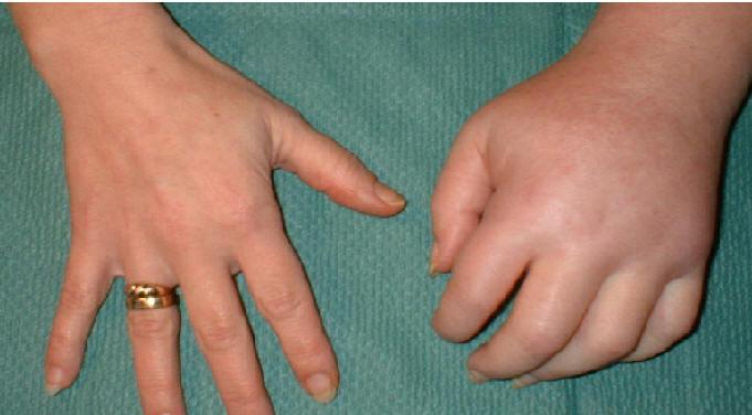 Какой антибиотик давать ребенку при кашле и насморке