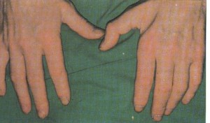 Панкоста синдром_атрофия мышц кисти