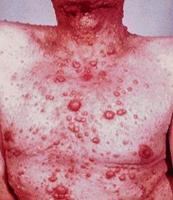 Реклингхаузена болезнь_множественные кожные нейрофибромы_1