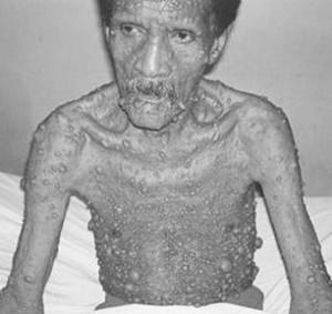 Реклингхаузена болезнь_множественные кожные нейрофибромы_2