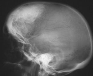 Морганьи-Стюарта-Мореля синдром_гиперостозы2