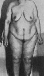Морганьи-Стюарта-Мореля синдром_внешний вид больной