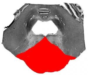 Плама-Познера синдром_схематическое изображение