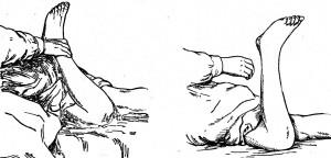 Фуа-Тевенара феномен голени