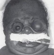 Пфайффера синдром_3 тип_лицо больного ребёнка