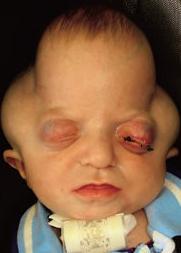 Пфайффера синдром_2 тип_лицо больного ребёнка (2)