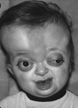 Пфайффера синдром_1 тип_лицо больного ребёнка