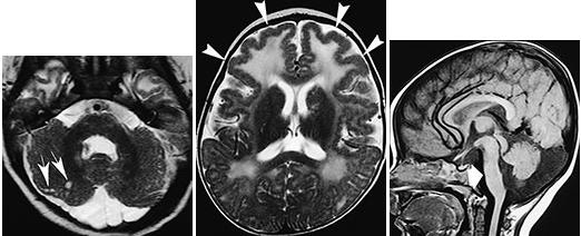 MEB disease_MRI_pics themselves