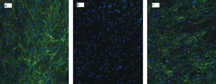 ullrich CMD_fibroblasts immunohistochemistry for collagenVI