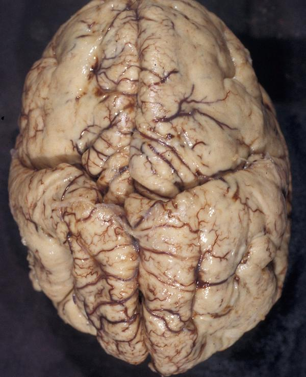 walker-warburg syndrome_brain macro