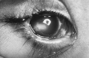 brown syndrome (2)_active corneal ulcer