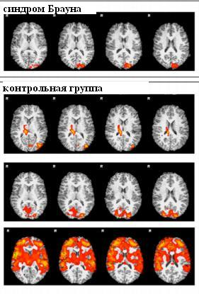 brown syndrome (2)_fMRI to pain stimuli
