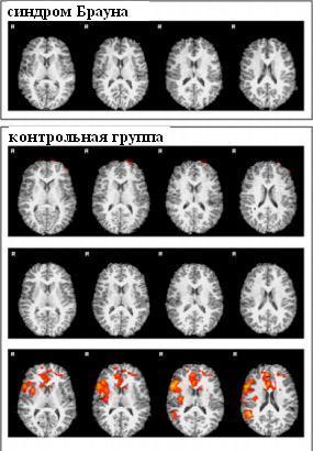 brown syndrome (2)_fMRI to warm stimuli