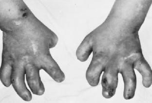 brown syndrome (2)_self-mutilation of fingers